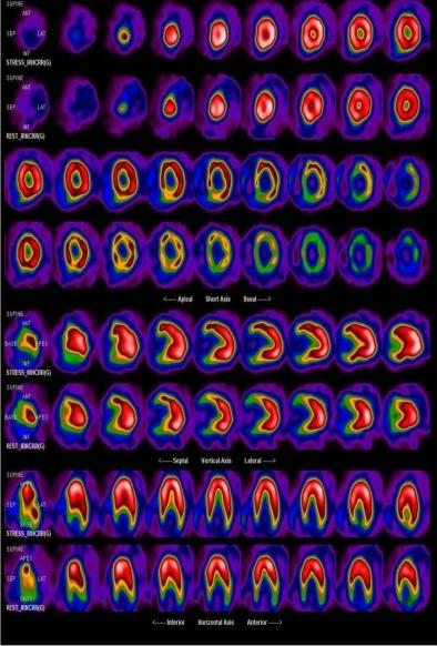 Cintilografia miocárdica com captação predominantemente na região apical.