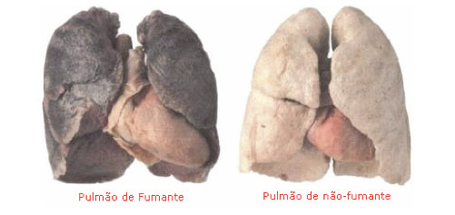 tabagismo-2