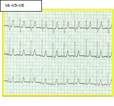 cardiopatia6